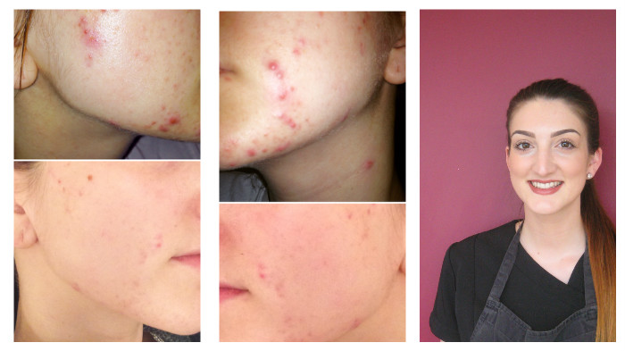 environ steph before and after